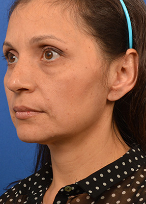 Dr. Larian removed parotid gland tumor for female patient alongside Babak Azizzadeh, MD, FACS
