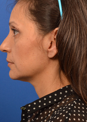 Woman has parotid tumor removal with Dr. Larian and facial reconstruction surgery with Dr. Azizzadeh.