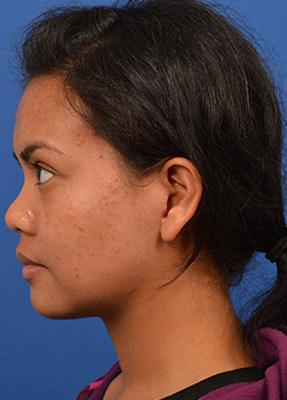 Micro-parotidectomy is utilized to remove large tumor from female patient's left parotid gland.