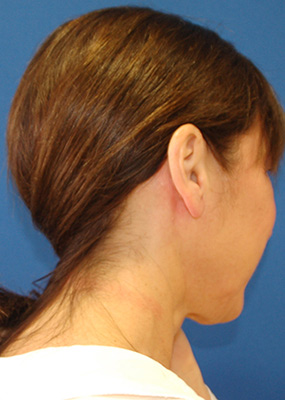 Minimally invasive parotidectomy produces no visible scarring for female patient.