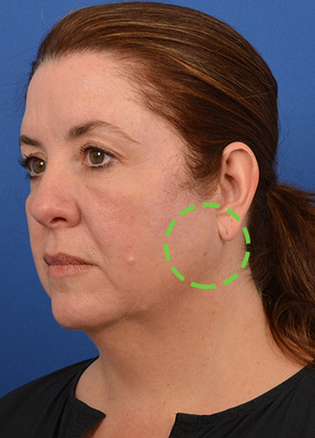 Female patient has a parotid tumor removed from the left side of her face.