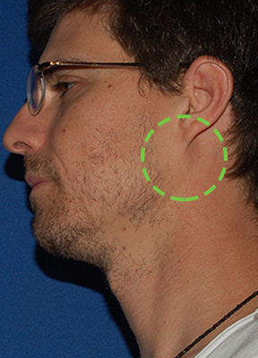 Side view of male patient before and after minimally invasive parotidectomy with no visible scar by Dr. Larian.